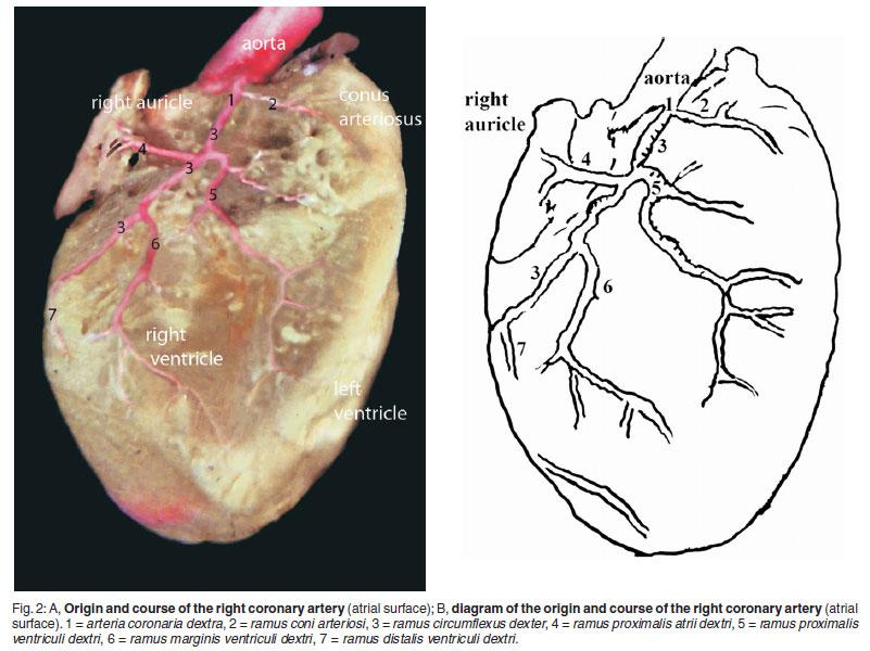 Macroscopic Description Of The Coronary Arteries In Swiss Albino