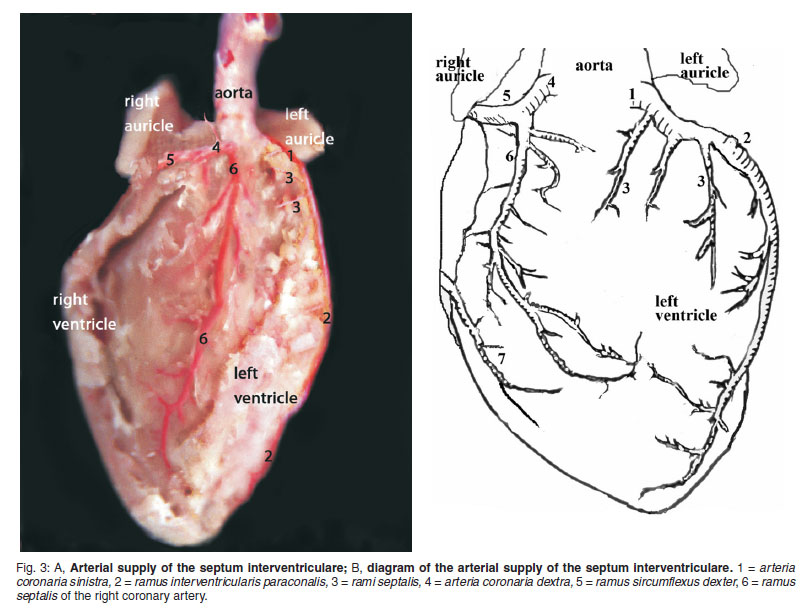 Macroscopic description of the coronary arteries in Swiss albino ...