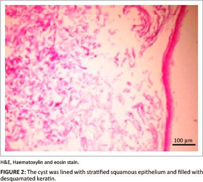 Intestinal dermoid cyst in a German shepherd dog