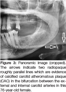 Radiopacities In Soft Tissue On Dental Radiographs Diagnostic