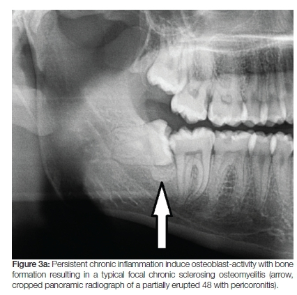 Immune-mediated response of bone in osteomyelitis ... Chronic Osteomyelitis Jaw