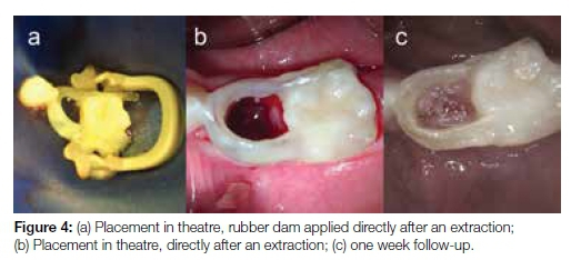Clinical Evaluation Of The Loop Design Fibre Reinforced Composite
