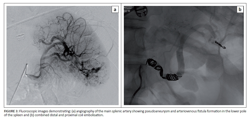 Splenic Artery Embolisation In The Non Operative Management Of Blunt