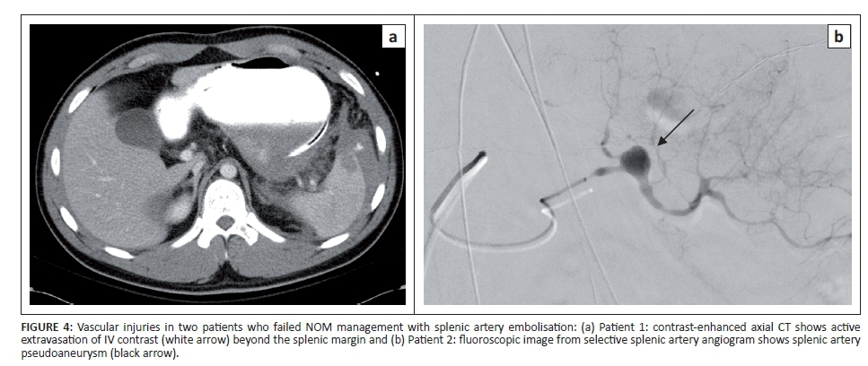 Splenic artery embolisation in the non-operative management of blunt ...