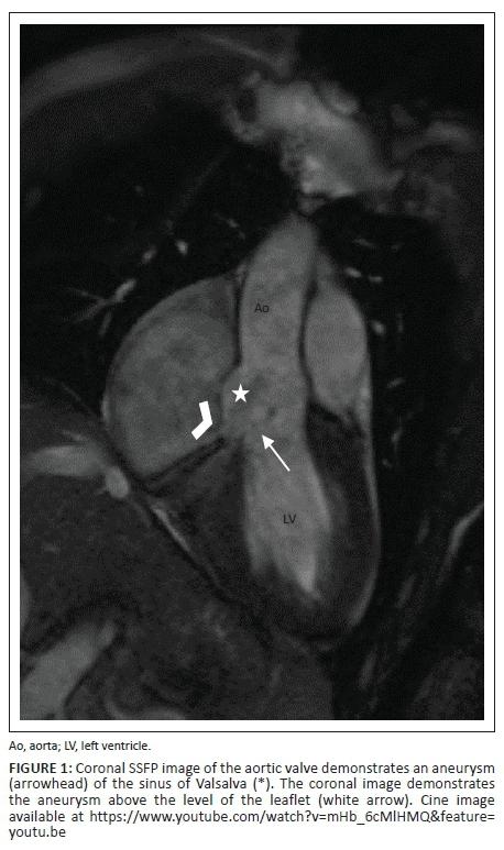 Cardiovascular magnetic resonance imaging in valvular heart