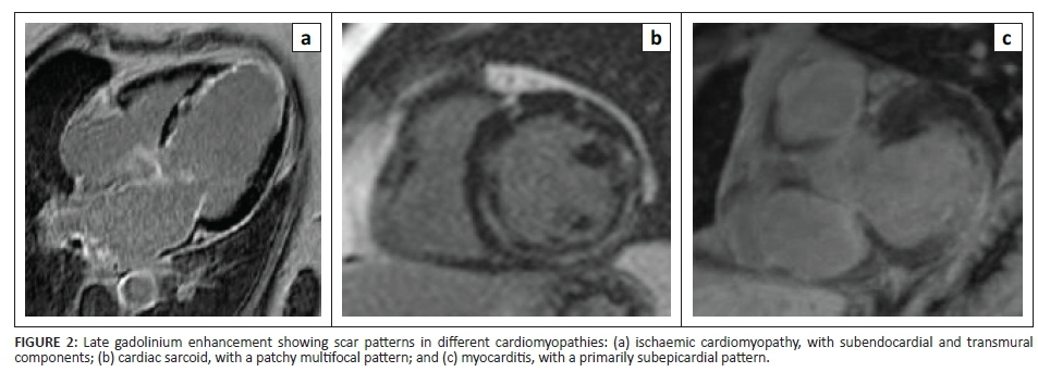 Imaging for cardiac electrophysiology