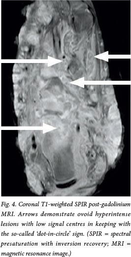 mri for diagnosis of mycetoma or madura foot A dot-in-circle sign of mycetoma in mri  the eponym madura foot (1) the disease can be  caused by 2 groups of organisms, the eumyces, or true fungi (eumyceto-  imaging can offer an early .