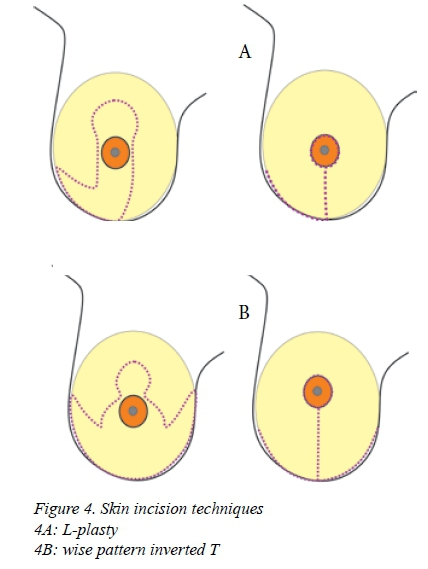 Y-pattern or wise pattern breast reduction