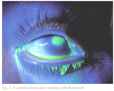 how to fix corneal scarring