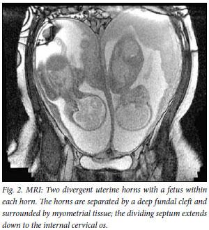 Mri Of A Twin Pregnancy In A Uterus Bicornis Unicollis