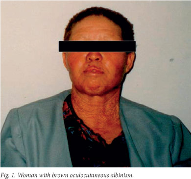 Biology And Genetics Of Oculocutaneous Albinism And