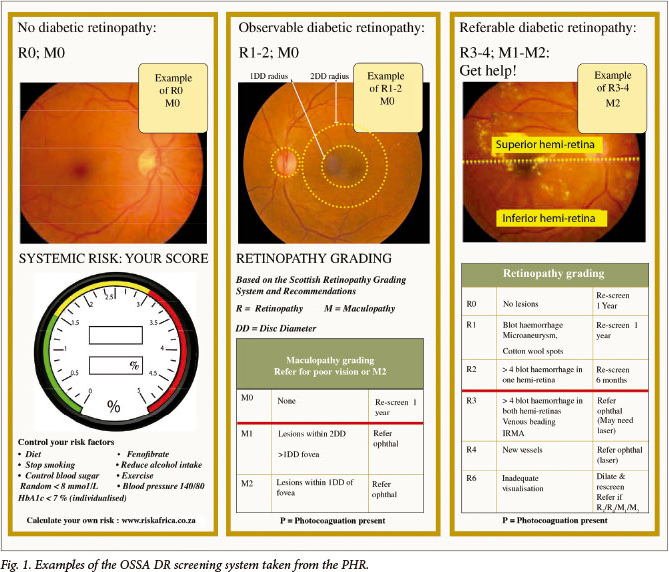 Diabetic Retinopathy The Ophthalmology Society Of