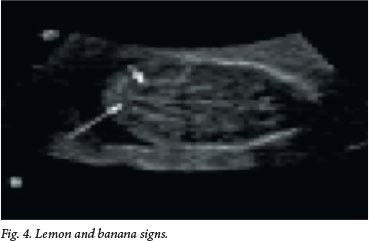 Aetiology and antenatal diagnosis of spina bifida