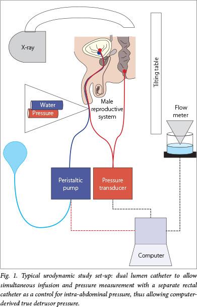 Flow rate test urodynamics study