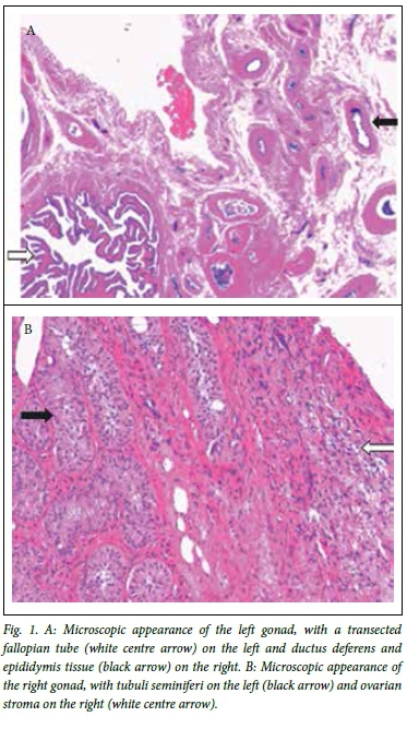 Gonadal Pathology In A Girl With 45x46xy Mosaicism