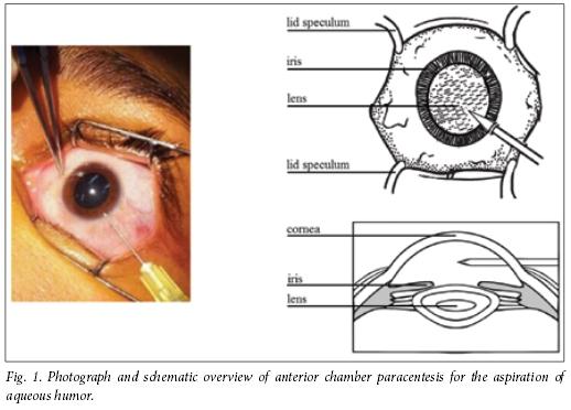 topical steroids gynecomastia
