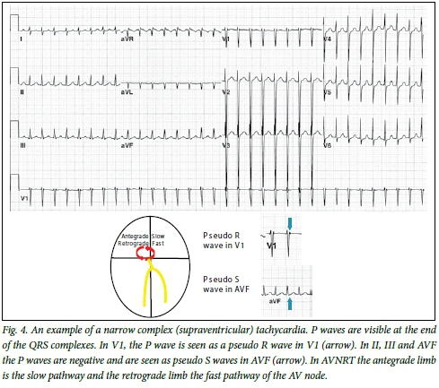 An approach to the patient with a suspected tachycardia in the
