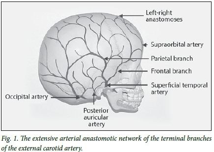 A Method For Determining When The Superficial Scalp Arteries Are The