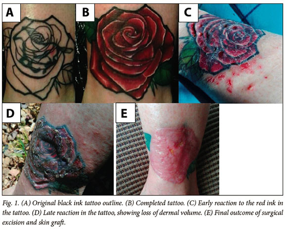 Tattoos: A summary knowledge for the practising clinician