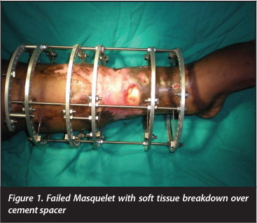 Open Tibial Bone Transport Following A Failed Bi Masquelet