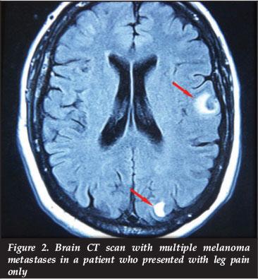 Mr neuropathy