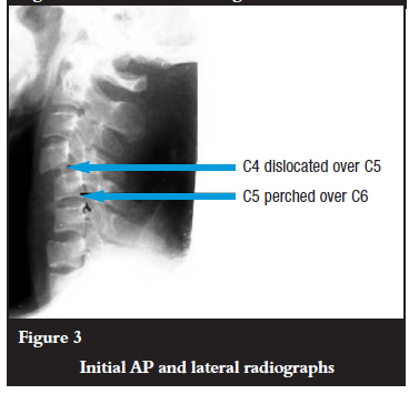 retrolisthesis due to accident A retrolisthesis is a posterior displacement of one vertebral body with respect to the subjacent vertebra to a degree less than a luxation (dislocation) clinically speaking, retrolisthesis is the opposite of spondylolisthesis (anterior displacement of one vertebral body on the subjacent vertebral body), and is also called retrospondylolisthesis.