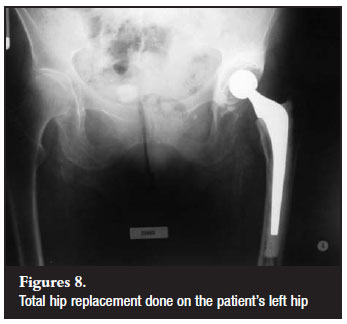 Misdiagnosis of hip pain could lead to unnecessary spinal surgery